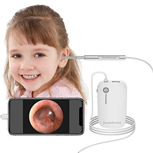 ScopeAround Ear Wax Removal Camera for iPhone Android Phone iPad Tablet, 1280x720 HD Smart Visual...