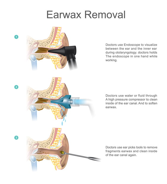 Earwax Removal by Doctors